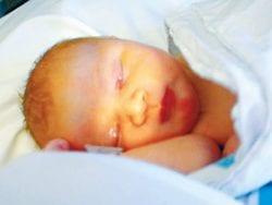 Yeni doğan bebeklerde sarılık