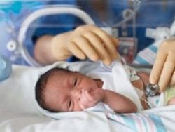 Prematüre bebeklerin kuvöze alınma nedenleri